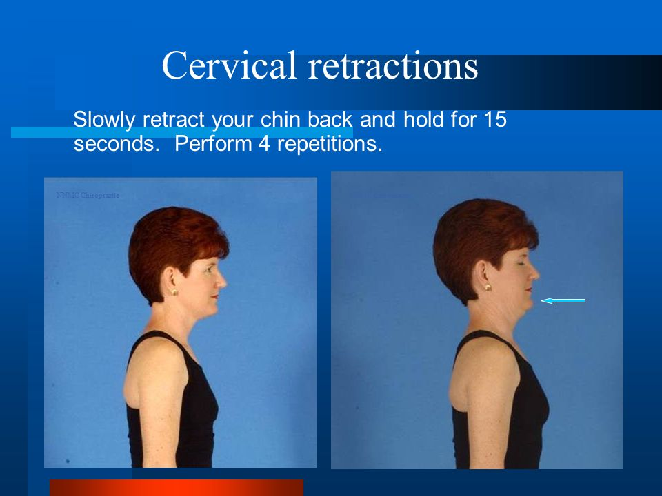Cervical retractions Slowly retract your chin back and hold for 15 seconds.