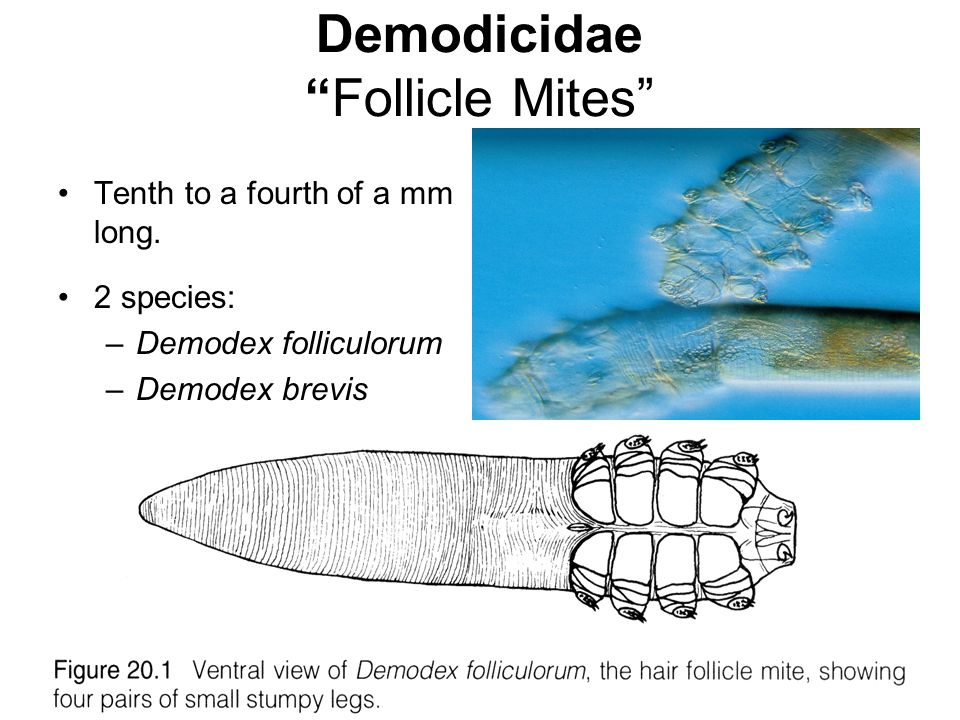 Demodicidae Follicle Mites Tenth to a fourth of a mm long.