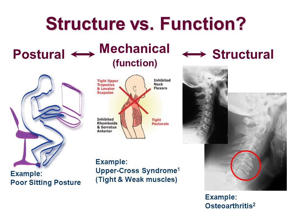 Structure vs. Function? Mechanical (function) Example: Upper-Cross Syndrome 1 (Tight & Weak muscles) Postural Example: Poor Sitting Posture Structural