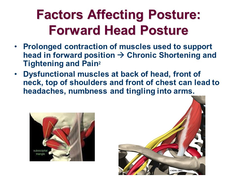 Factors Affecting Posture: Forward Head Posture Prolonged contraction of muscles used to support head in forward position  Chronic Shortening and Tig