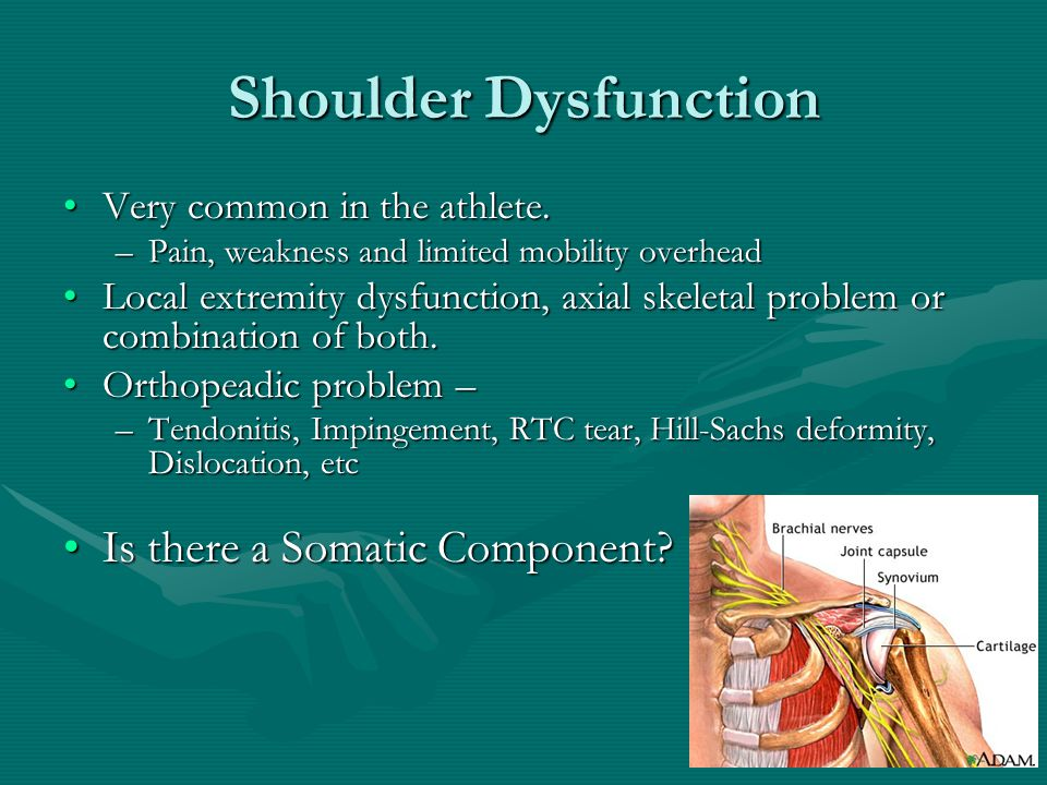 Shoulder Dysfunction Very common in the athlete.Very common in the athlete. –Pain, weakness and limited mobility overhead Local extremity dysfunction,