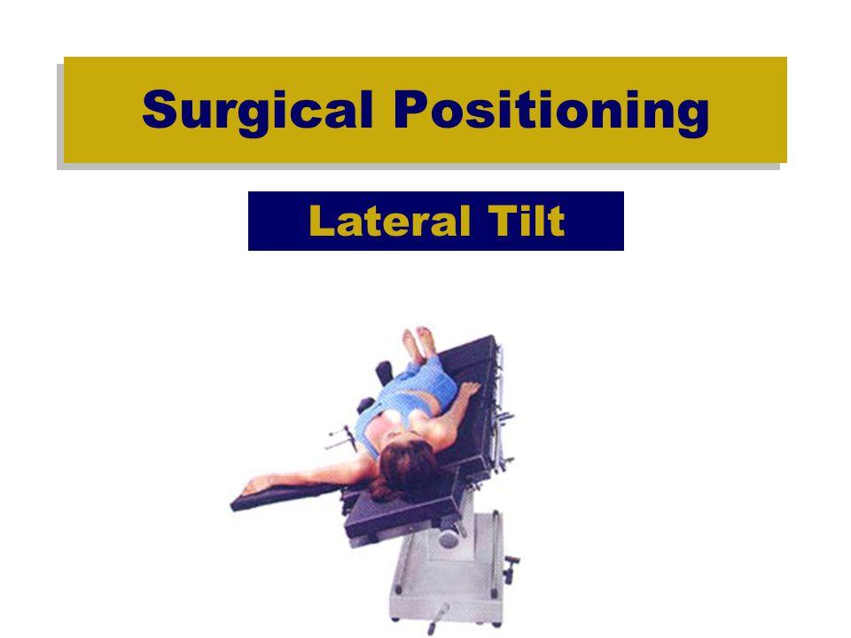 Surgical Positioning Trendelenberg – Reverse Trendelenberg