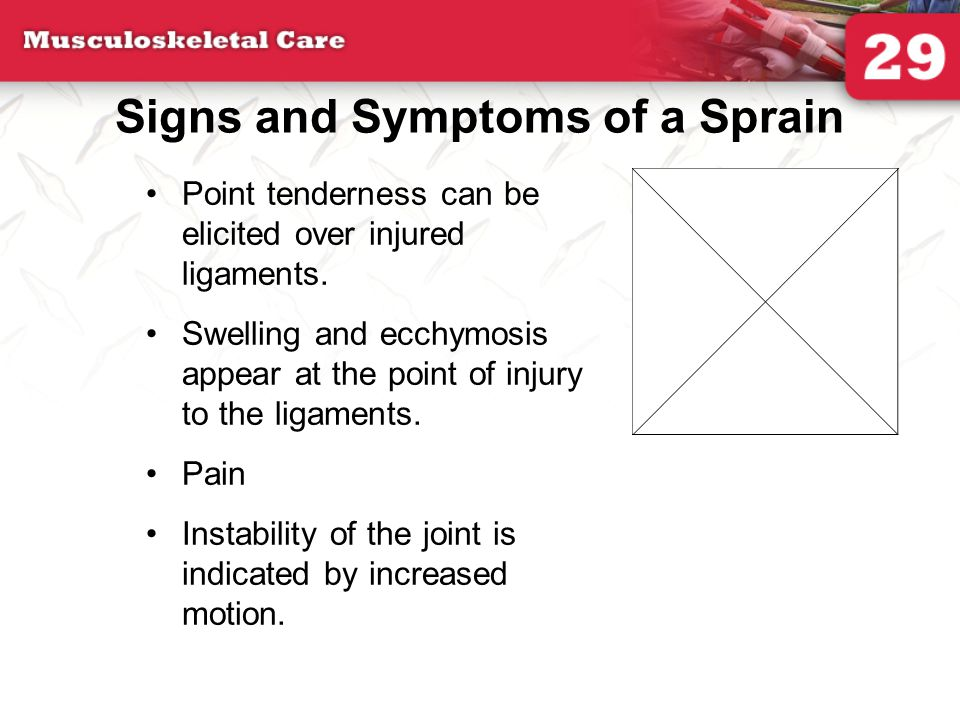 Signs and Symptoms of a Sprain Point tenderness can be elicited over injured ligaments. Swelling and ecchymosis appear at the point of injury to the l
