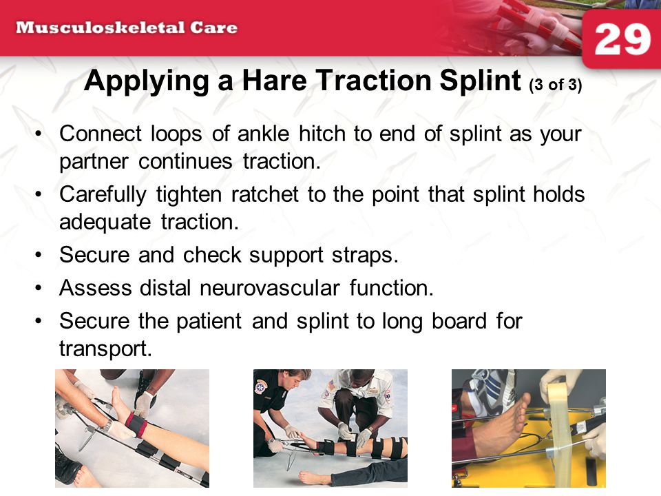 Applying a Hare Traction Splint (3 of 3) Connect loops of ankle hitch to end of splint as your partner continues traction. Carefully tighten ratchet t