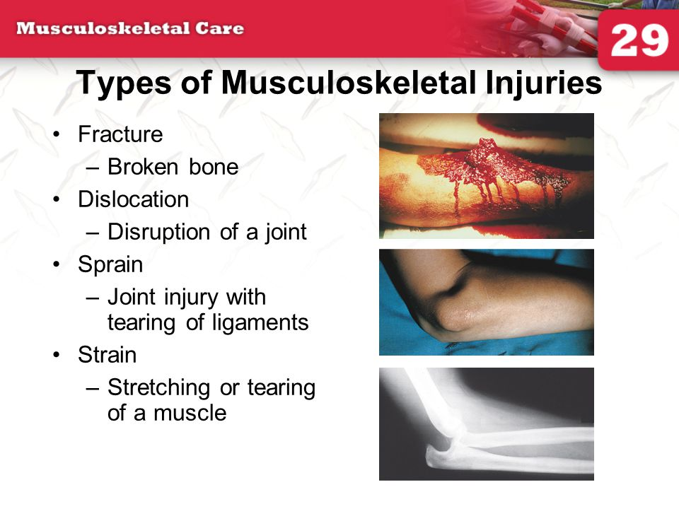 Compartment Syndrome Most commonly occurs in a fractured tibia or forearm of children Elevated pressure within a fascial compartment Develops within 6 to 12 hours after injury Pain out of proportion with injury Splint affected limb, keeping it at the level of the heart.