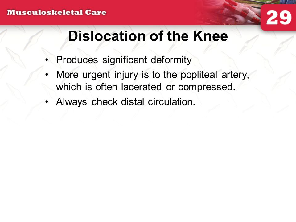 Dislocation of the Knee Produces significant deformity More urgent injury is to the popliteal artery, which is often lacerated or compressed. Always c