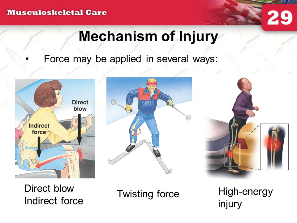 Fractures Closed fracture –A fracture that does not break the skin Open fracture –External wound associated with fracture Nondisplaced fracture –Simple crack of the bone Displaced fracture Fracture in which there is actual deformity