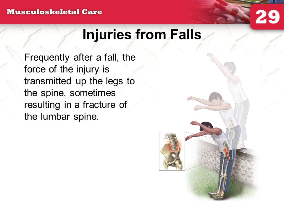 Injuries from Falls Frequently after a fall, the force of the injury is transmitted up the legs to the spine, sometimes resulting in a fracture of the