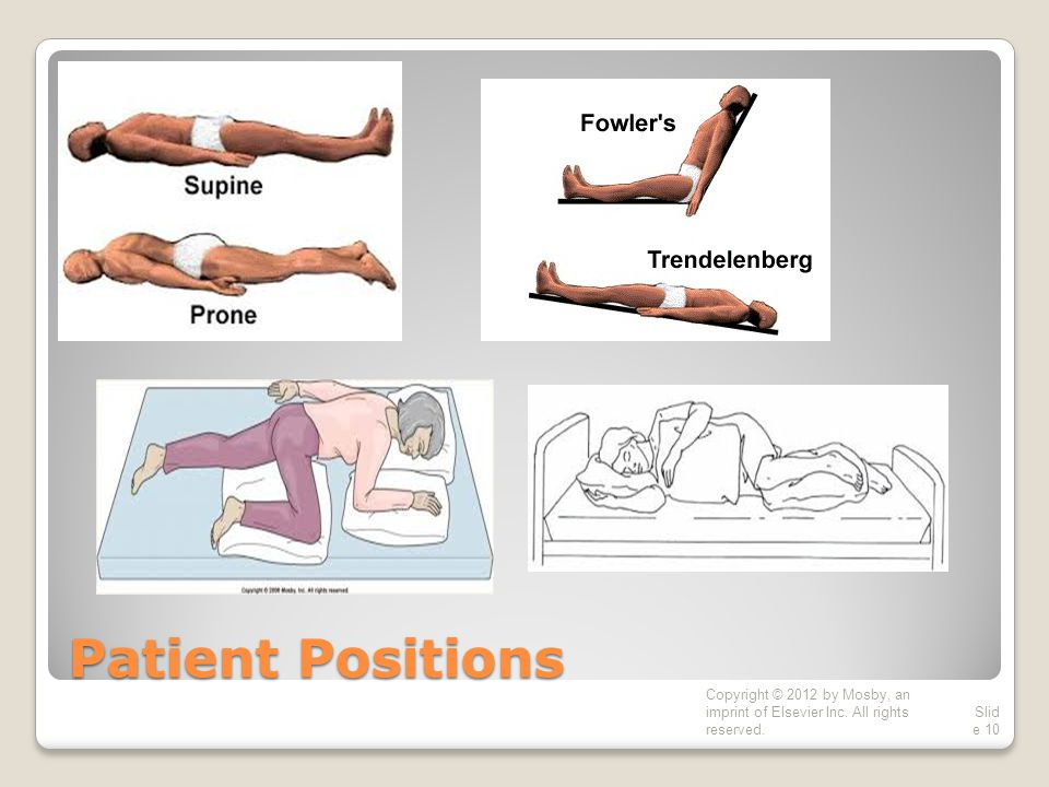 Patient Positions Copyright © 2012 by Mosby, an imprint of Elsevier Inc.