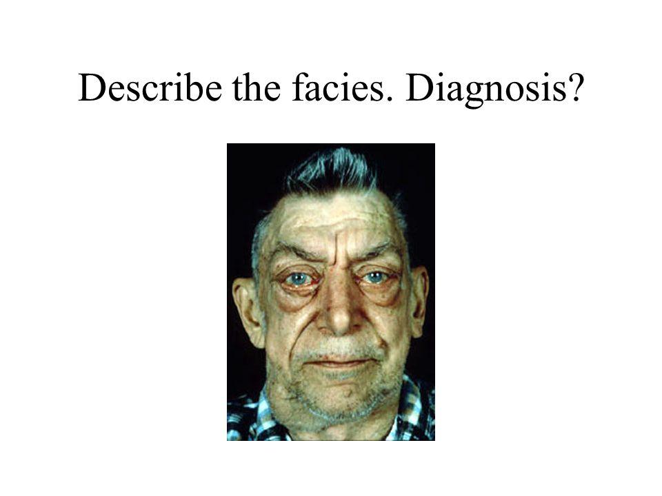 Describe the facies. Diagnosis?