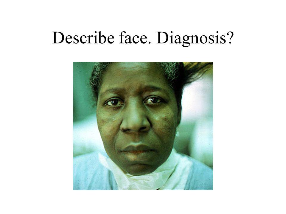 Describe face. Diagnosis?