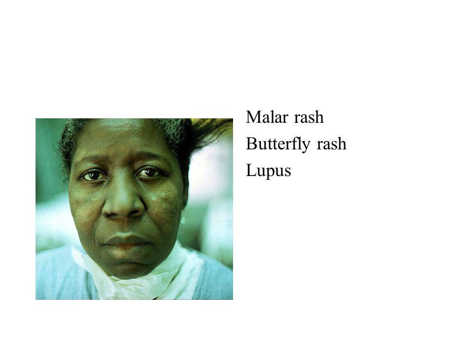 Malar rash Butterfly rash Lupus