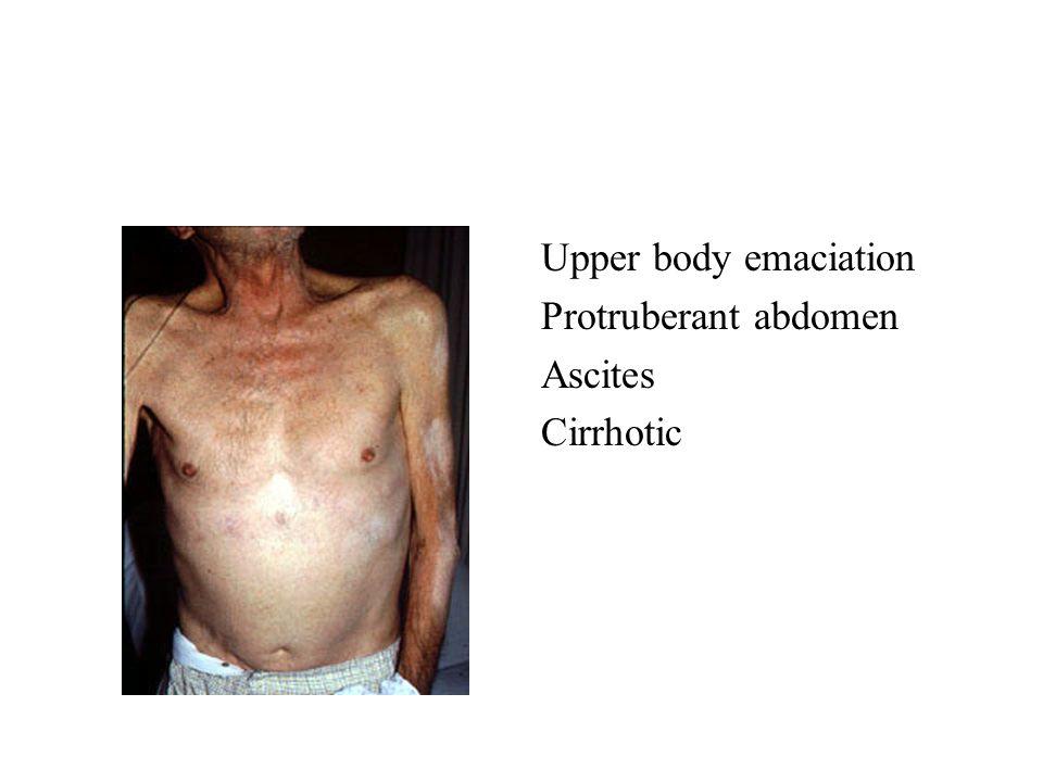 Upper body emaciation Protruberant abdomen Ascites Cirrhotic