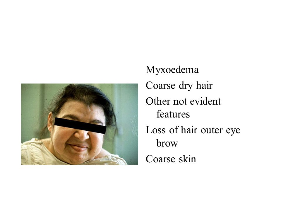 Myxoedema Coarse dry hair Other not evident features Loss of hair outer eye brow Coarse skin