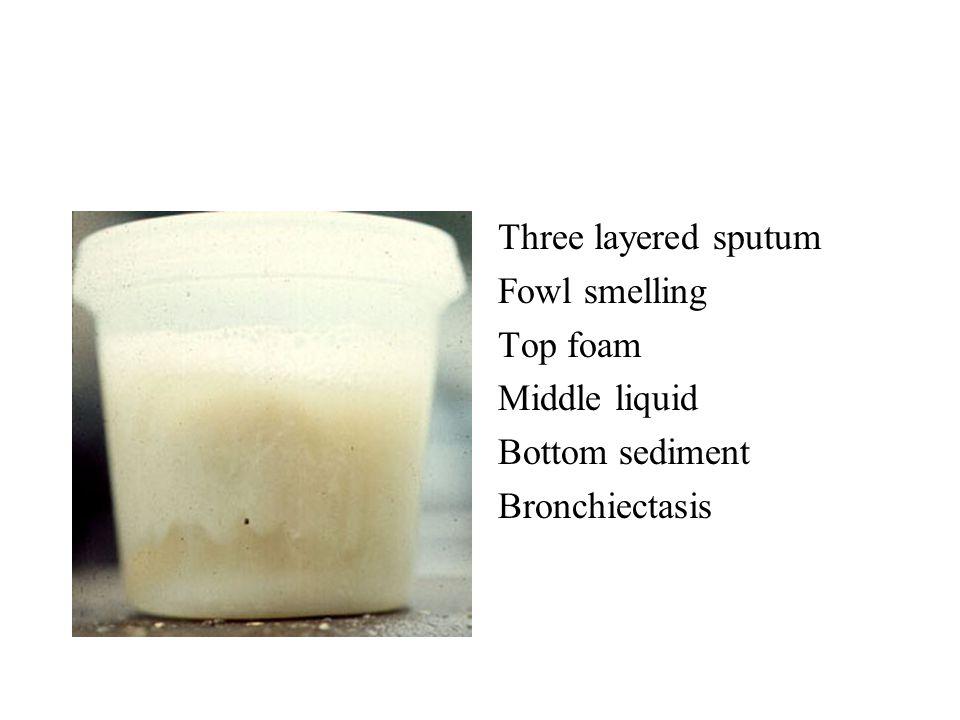 Three layered sputum Fowl smelling Top foam Middle liquid Bottom sediment Bronchiectasis