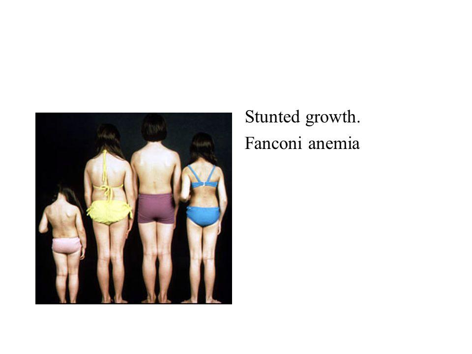 Stunted growth. Fanconi anemia