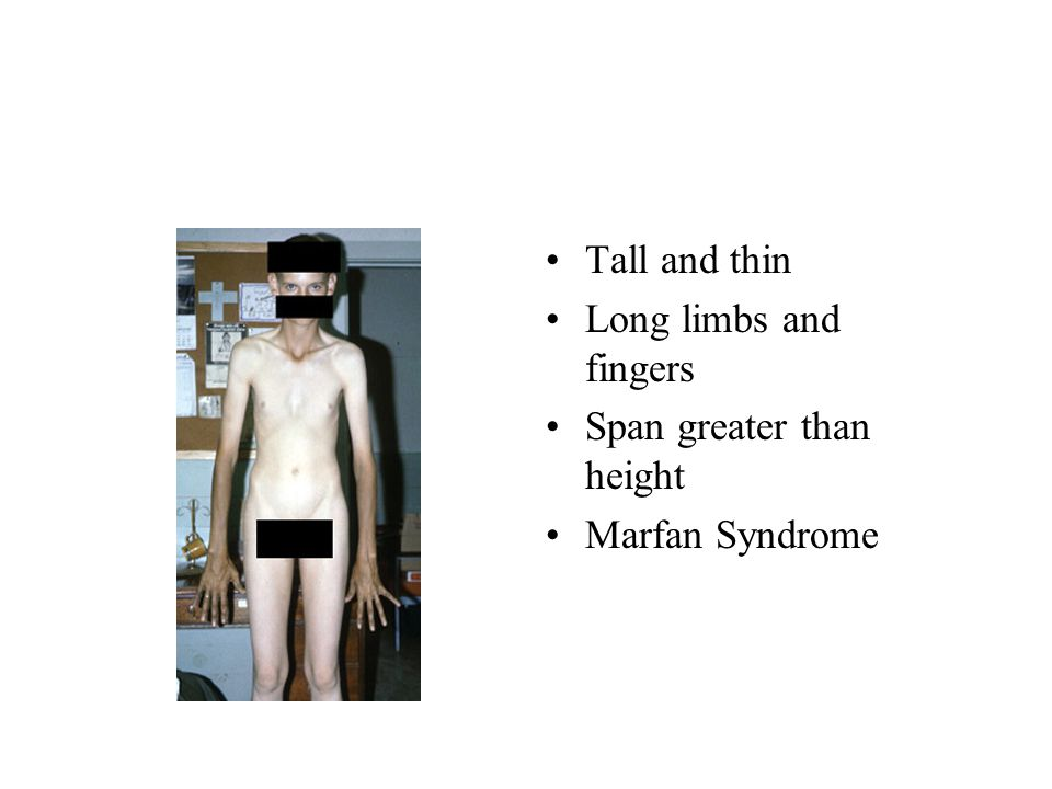 Tall and thin Long limbs and fingers Span greater than height Marfan Syndrome