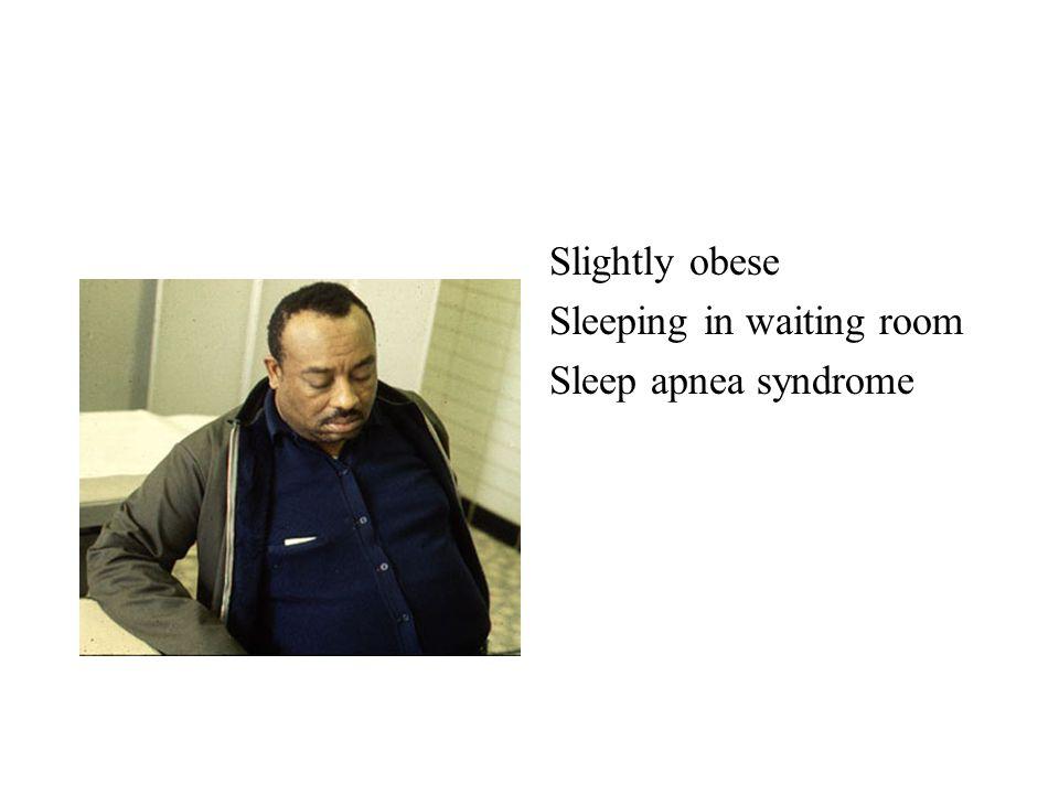 Slightly obese Sleeping in waiting room Sleep apnea syndrome
