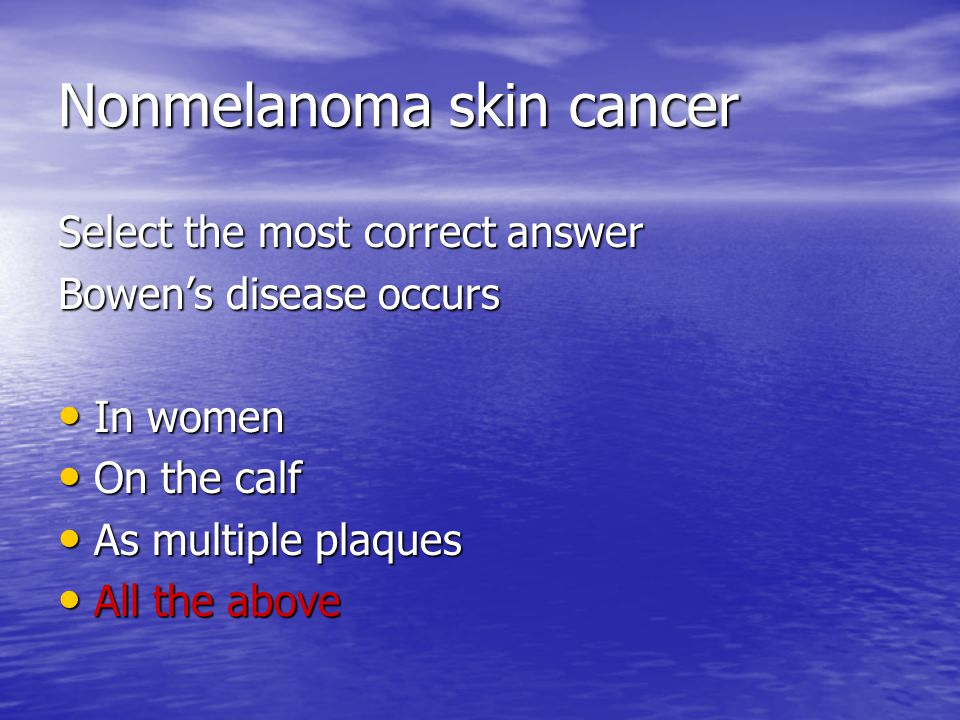 Nonmelanoma skin cancer Select the most correct answer Bowen's disease occurs In women In women On the calf On the calf As multiple plaques As multiple plaques All the above All the above