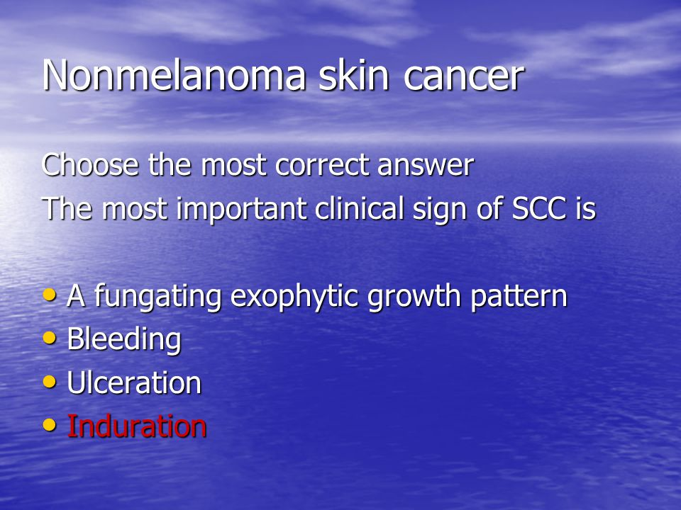 Nonmelanoma skin cancer Choose the most correct answer The most important clinical sign of SCC is A fungating exophytic growth pattern A fungating exophytic growth pattern Bleeding Bleeding Ulceration Ulceration Induration Induration