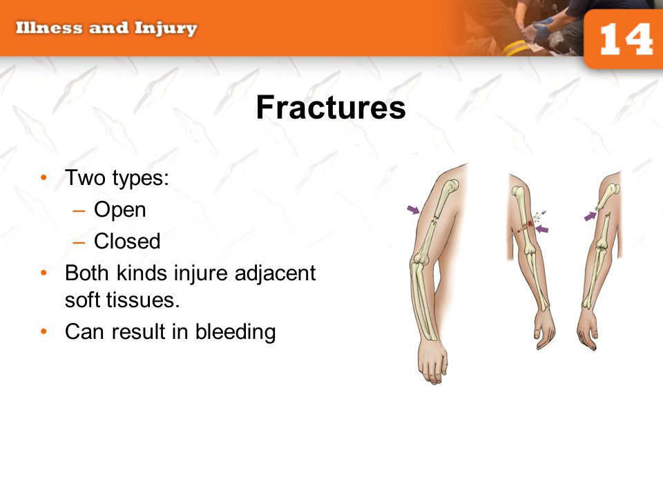 Fractures Two types: –Open –Closed Both kinds injure adjacent soft tissues. Can result in bleeding