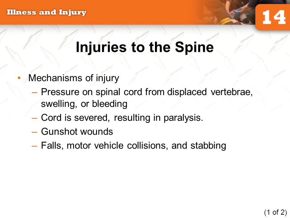 Injuries to the Spine Mechanisms of injury –Pressure on spinal cord from displaced vertebrae, swelling, or bleeding –Cord is severed, resulting in par