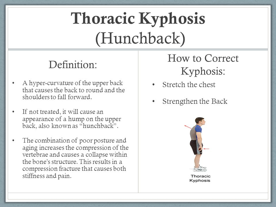 Thoracic Kyphosis (Hunchback) Definition: A hyper-curvature of the upper back that causes the back to round and the shoulders to fall forward. If not
