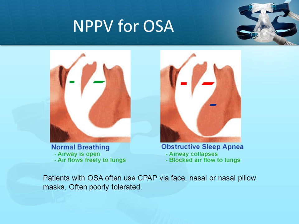 NPPV for OSA Patients with OSA often use CPAP via face, nasal or nasal pillow masks. Often poorly tolerated.