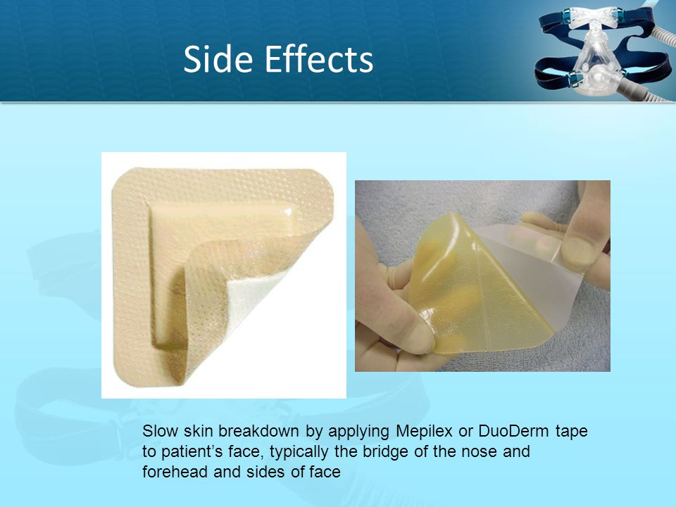 Side Effects Slow skin breakdown by applying Mepilex or DuoDerm tape to patient's face, typically the bridge of the nose and forehead and sides of fac