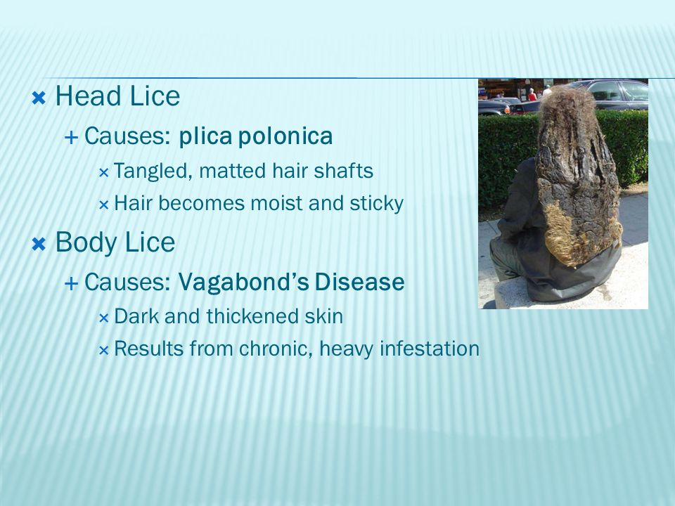  Head Lice  Causes: plica polonica  Tangled, matted hair shafts  Hair becomes moist and sticky  Body Lice  Causes: Vagabond's Disease  Dark and