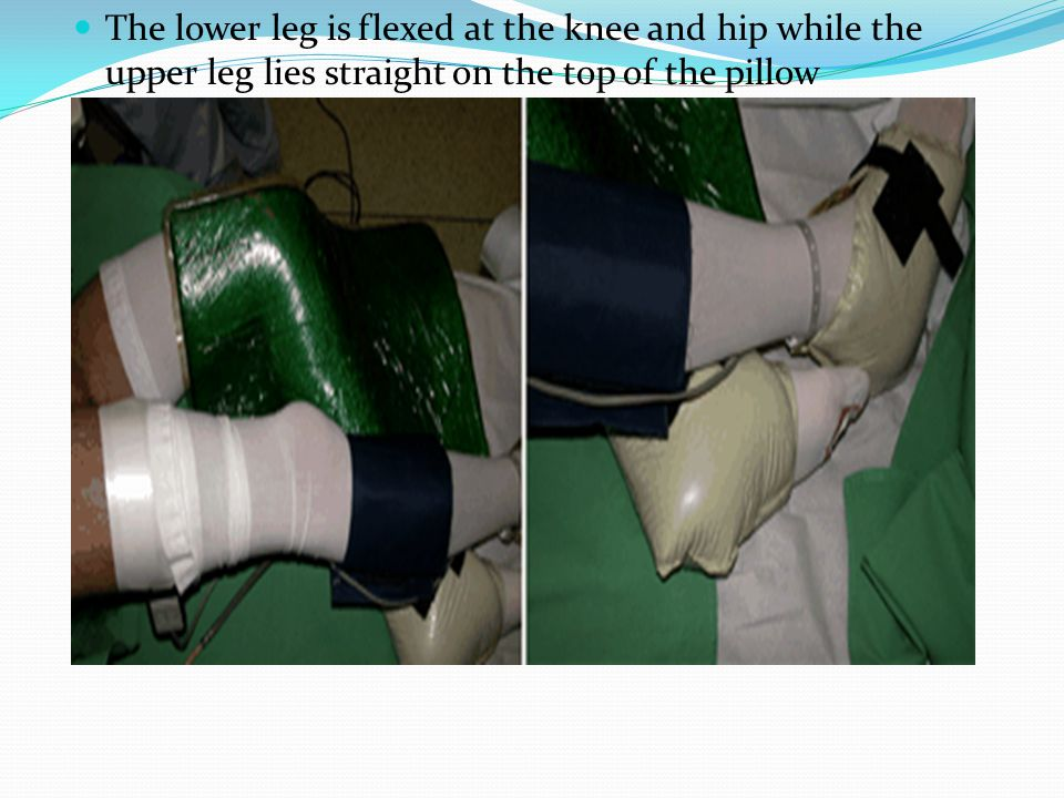 The lower leg is flexed at the knee and hip while the upper leg lies straight on the top of the pillow