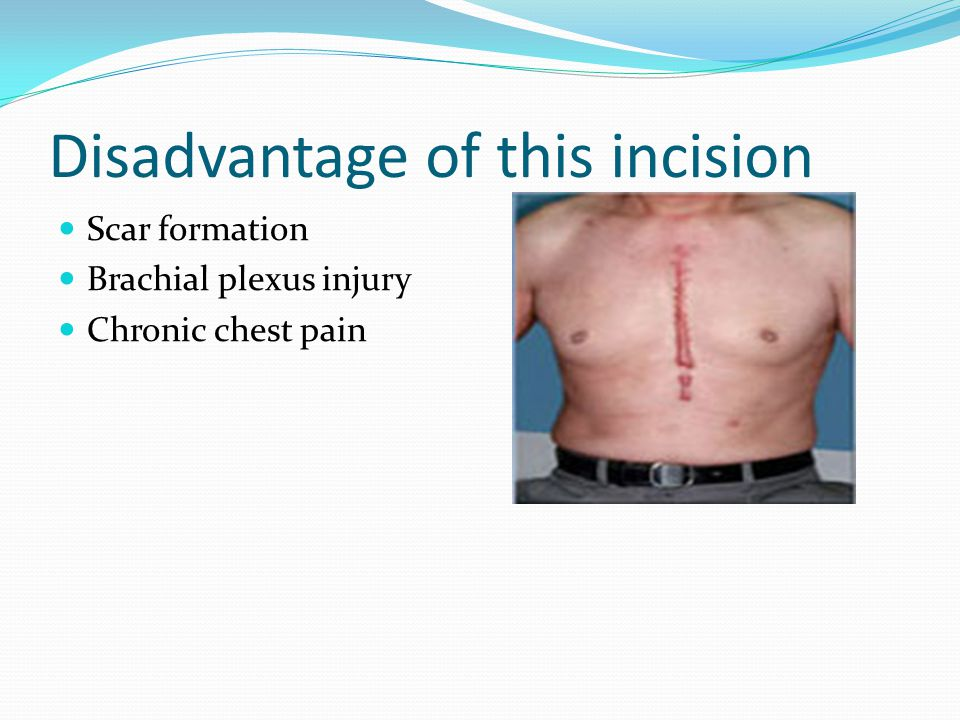 Disadvantage of this incision Scar formation Brachial plexus injury Chronic chest pain