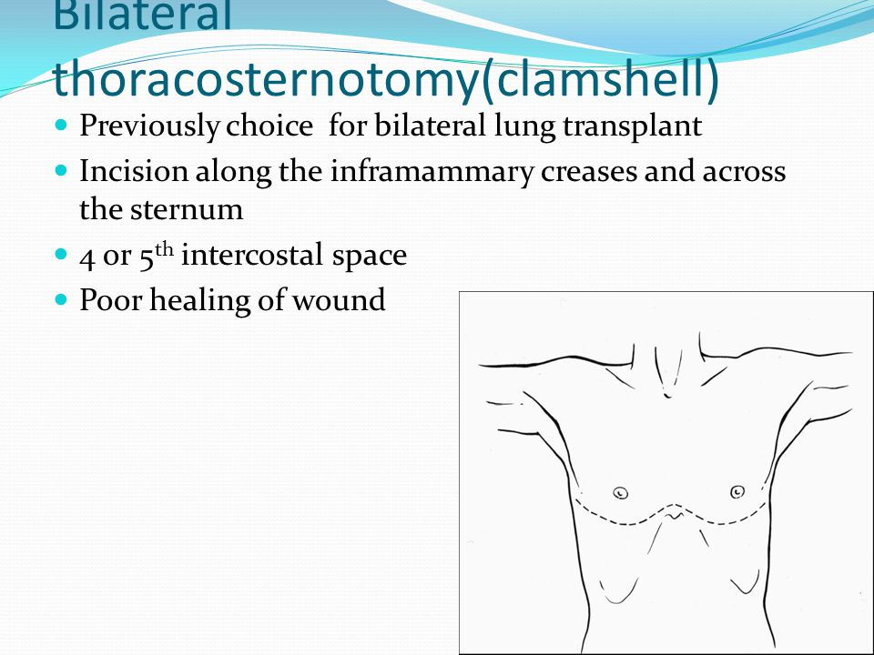 Bilateral thoracosternotomy(clamshell) Previously choice for bilateral lung transplant Incision along the inframammary creases and across the sternum 4 or 5 th intercostal space Poor healing of wound