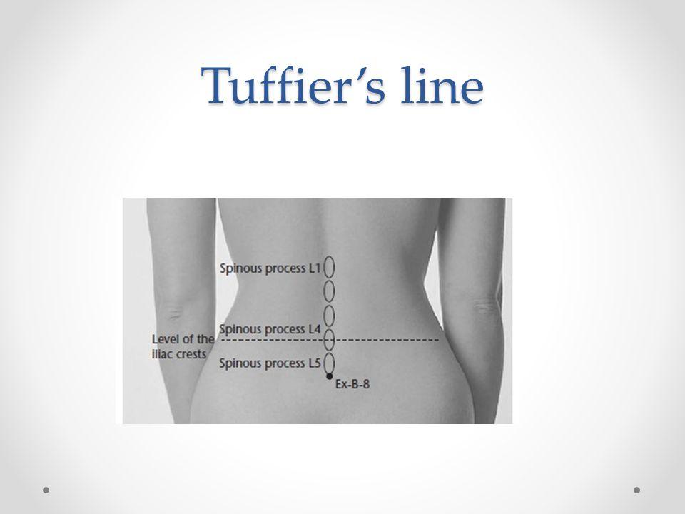 Tuffier's line