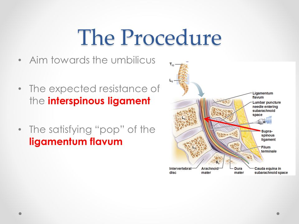The Procedure Aim towards the umbilicus The expected resistance of the interspinous ligament The satisfying pop of the ligamentum flavum