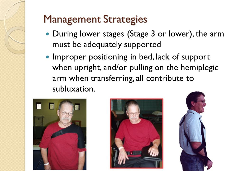 During lower stages (Stage 3 or lower), the arm must be adequately supported Improper positioning in bed, lack of support when upright, and/or pulling on the hemiplegic arm when transferring, all contribute to subluxation.