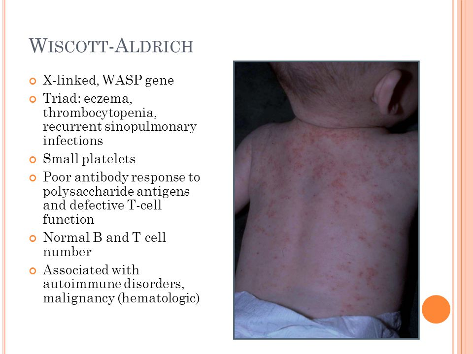 W ISCOTT -A LDRICH X-linked, WASP gene Triad: eczema, thrombocytopenia, recurrent sinopulmonary infections Small platelets Poor antibody response to p