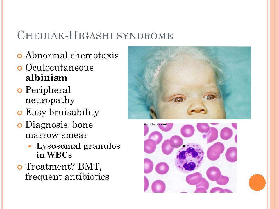 C HEDIAK -H IGASHI SYNDROME Abnormal chemotaxis Oculocutaneous albinism Peripheral neuropathy Easy bruisability Diagnosis: bone marrow smear Lysosomal granules in WBCs Treatment.