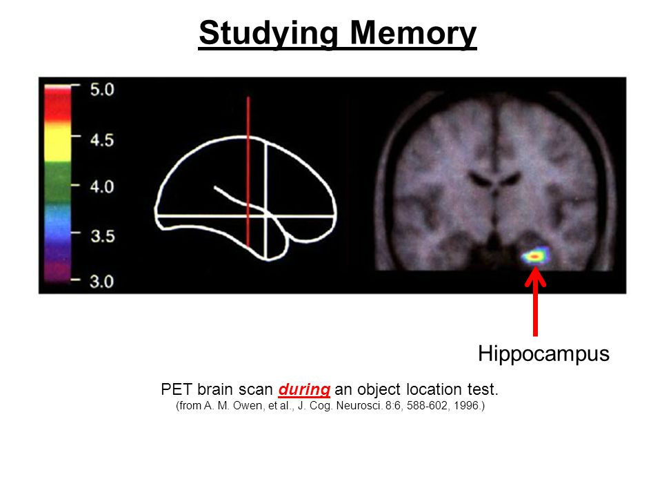 Studying Memory PET brain scan during an object location test.