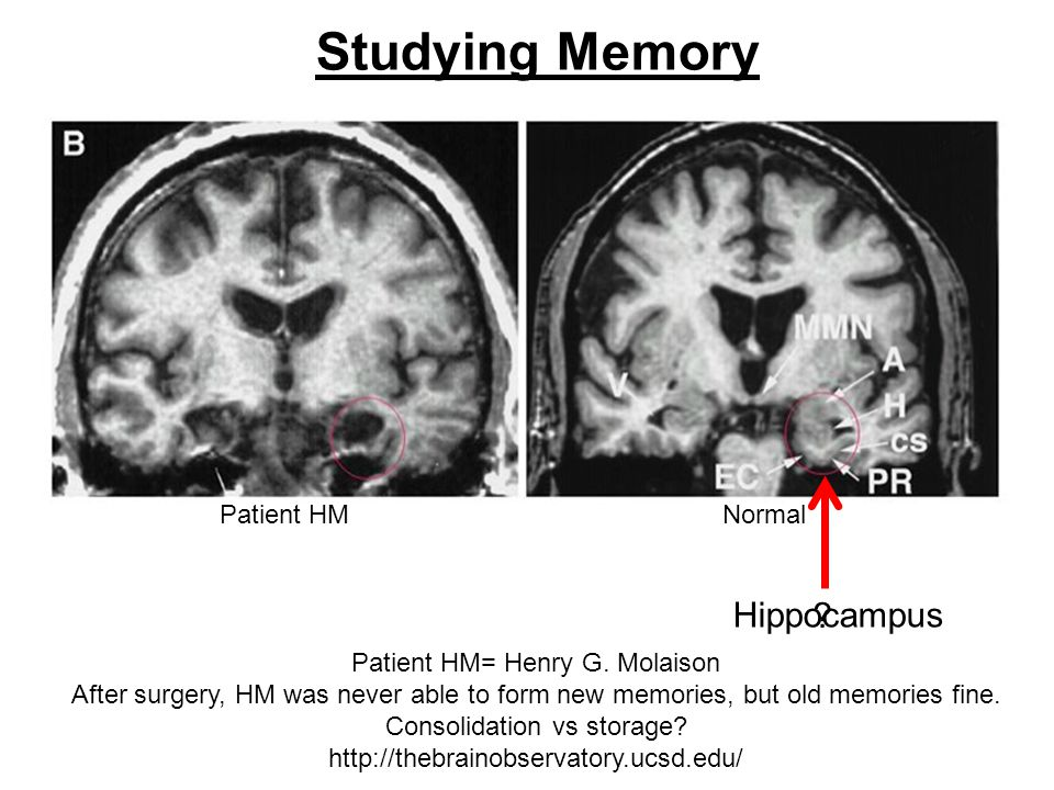Studying Memory Patient HM= Henry G. Molaison After surgery, HM was never able to form new memories, but old memories fine. Consolidation vs storage?