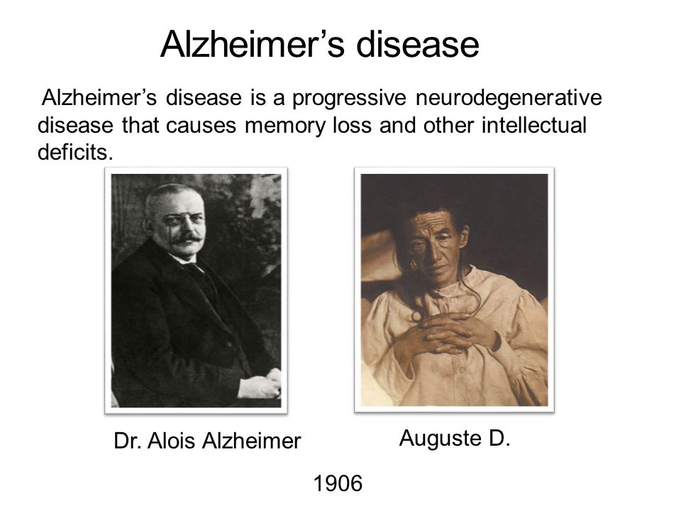 Alzheimer's disease Alzheimer's disease is a progressive neurodegenerative disease that causes memory loss and other intellectual deficits.