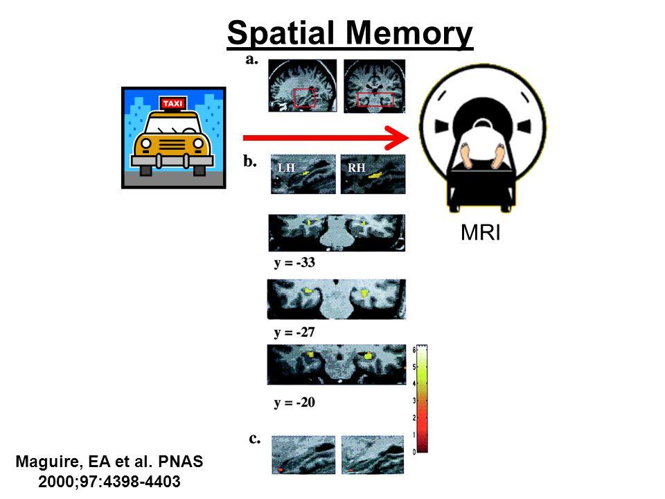 Spatial Memory MRI Maguire, EA et al. PNAS 2000;97:4398-4403