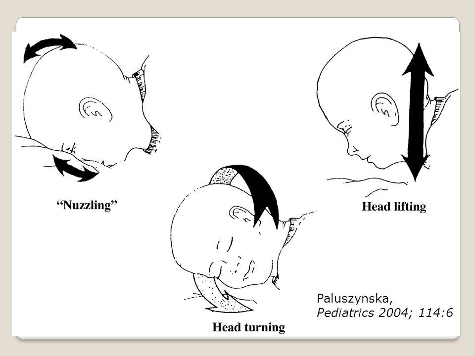 Paluszynska, Pediatrics 2004; 114:6