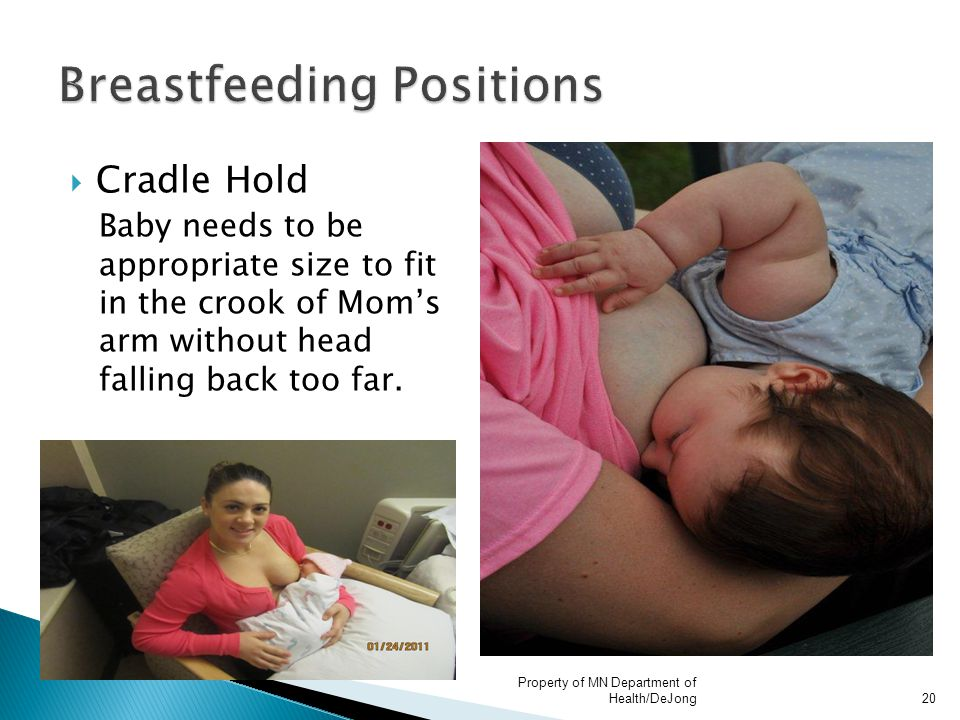  Cradle Hold Baby needs to be appropriate size to fit in the crook of Mom's arm without head falling back too far. Property of MN Department of Healt