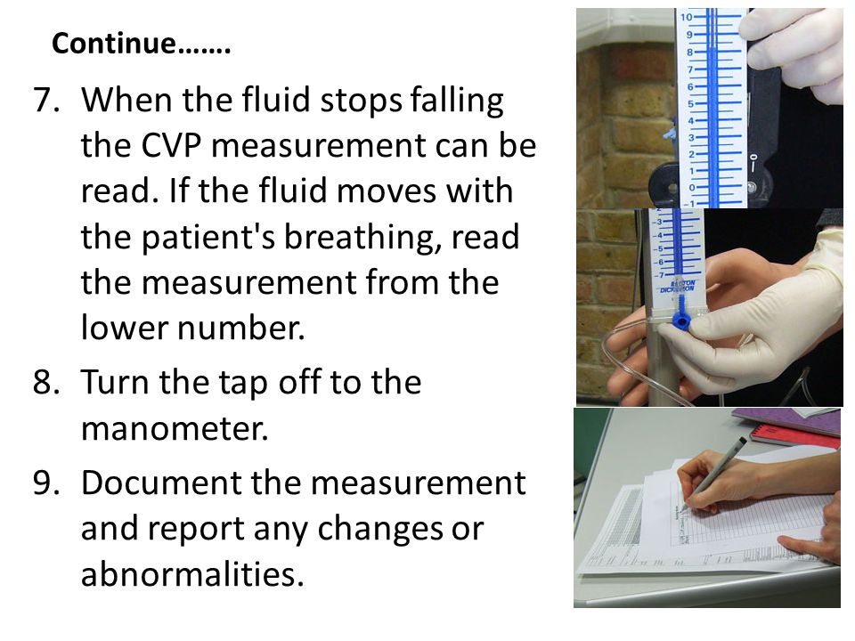 7.When the fluid stops falling the CVP measurement can be read. If the fluid moves with the patient's breathing, read the measurement from the lower n