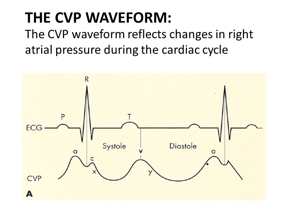 THE CVP WAVEFORM: The CVP waveform reflects changes in right atrial pressure during the cardiac cycle