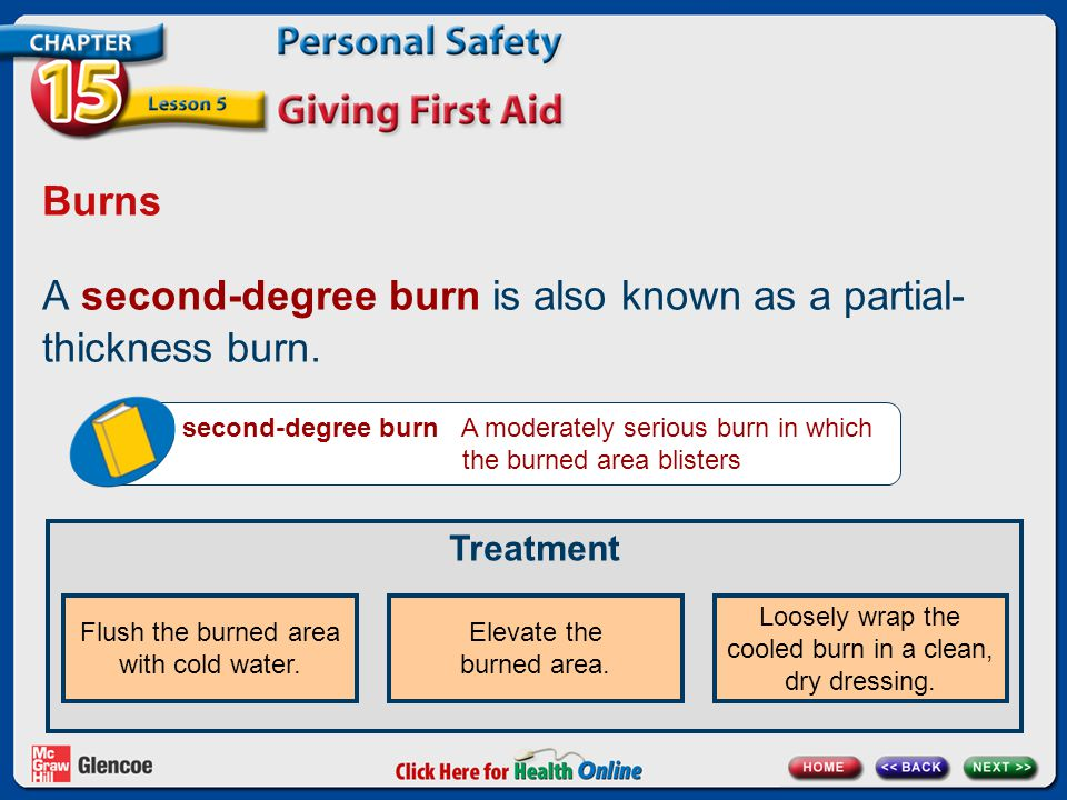 Burns A second-degree burn is also known as a partial- thickness burn.