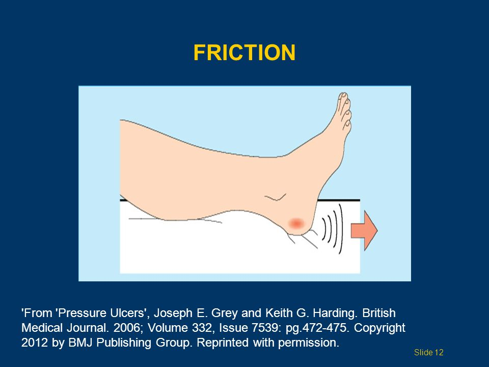FRICTION Slide 12 From Pressure Ulcers , Joseph E.
