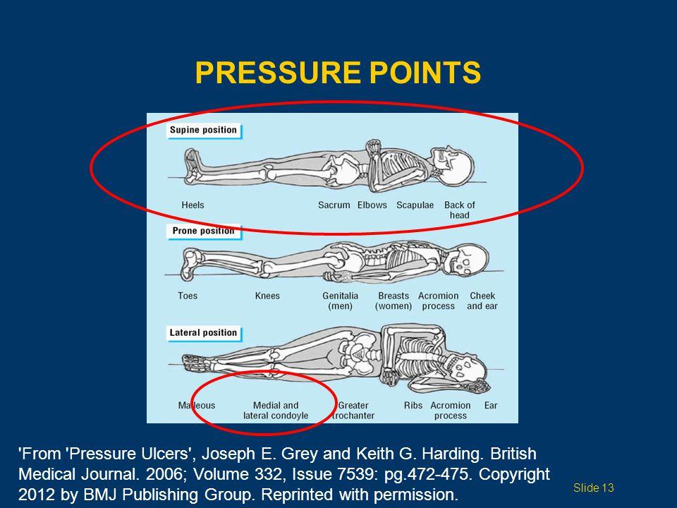 PRESSURE POINTS Slide 13 From Pressure Ulcers , Joseph E.