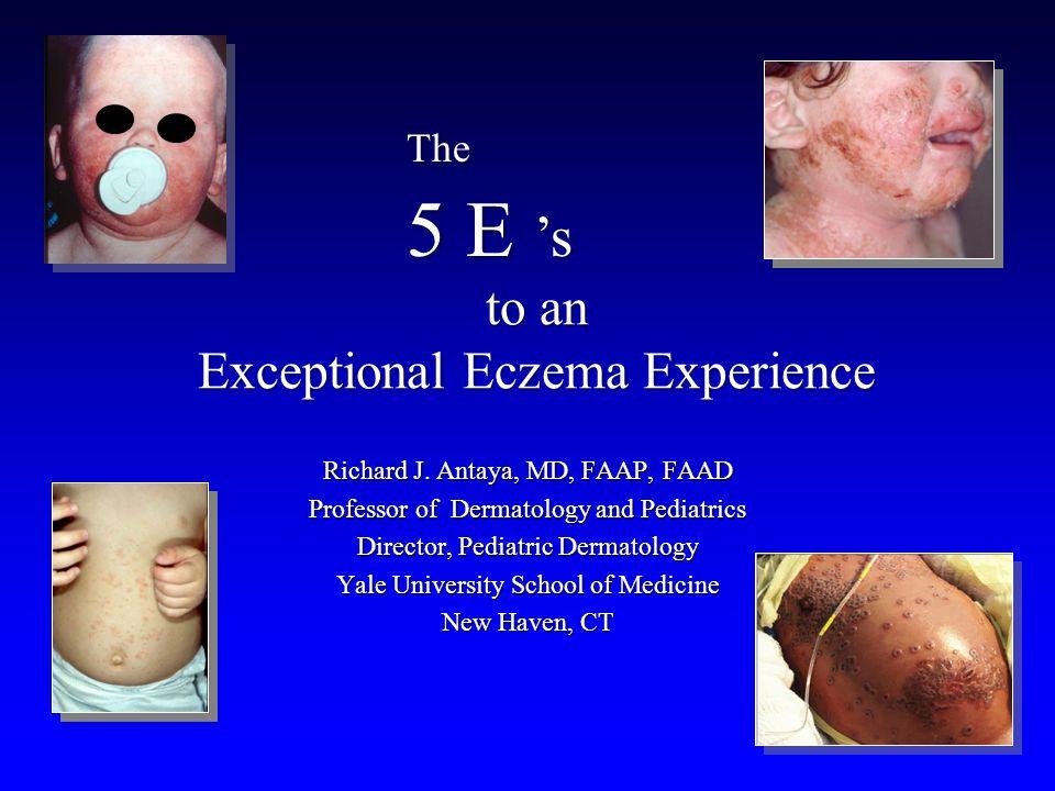 to an Exceptional Eczema Experience Richard J. Antaya, MD, FAAP, FAAD Professor of Dermatology and Pediatrics Director, Pediatric Dermatology Yale Uni